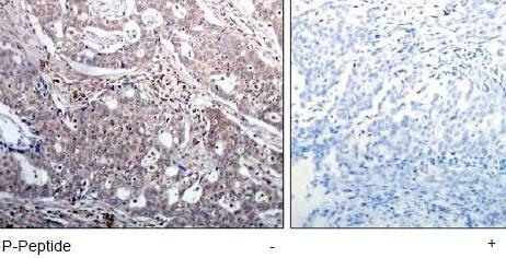 Immunohistochemistry (Formalin/PFA-fixed paraffin-embedded sections) - Anti-IkB beta (phospho S23) antibody (ab75746)