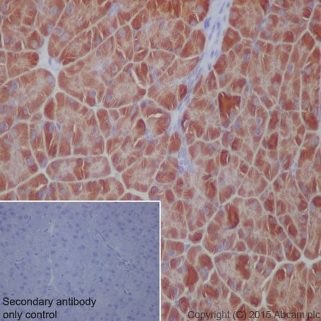 Immunohistochemistry (Formalin/PFA-fixed paraffin-embedded sections) - Anti-EEF2/Elongation factor 2 antibody [EP880Y] (ab75748)
