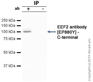 Immunoprecipitation - Anti-EEF2/Elongation factor 2 antibody [EP880Y] (ab75748)