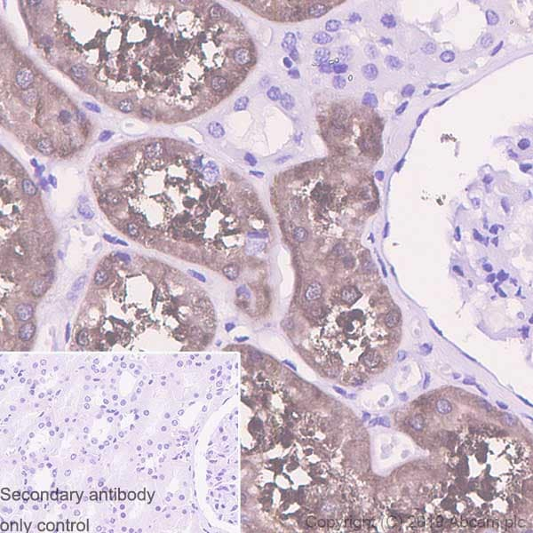 Immunohistochemistry (Formalin/PFA-fixed paraffin-embedded sections) - Anti-Aldolase B + Aldolase C antibody [EPR3138Y] (ab75751)