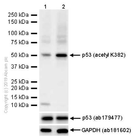 Western blot - Anti-p53 (acetyl K382) antibody [EPR358(2)] (ab75754)
