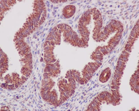 Immunohistochemistry (Formalin/PFA-fixed paraffin-embedded sections) - Anti-Prohibitin antibody [EP2804Y] - Mitochondrial Marker (ab75771)