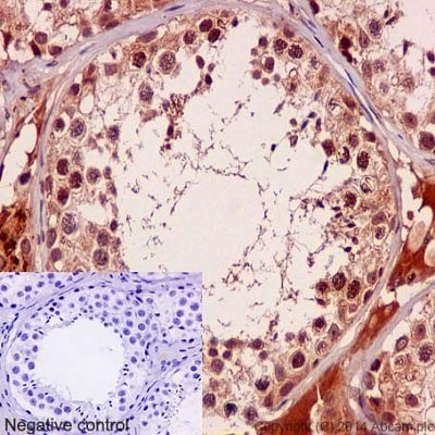 Immunohistochemistry (Formalin/PFA-fixed paraffin-embedded sections) - Anti-p95/NBS1 (phospho S432) antibody [EPR2470Y] (ab75778)