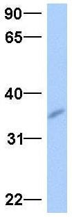 Western blot - Anti-GPSN2 antibody (ab75786)
