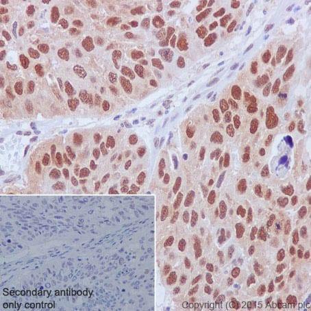 Immunohistochemistry (Formalin/PFA-fixed paraffin-embedded sections) - Anti-Cullin 1/CUL-1 antibody [EPR3103Y] (ab75817)