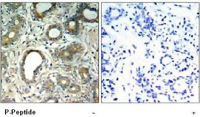 Immunohistochemistry (Formalin/PFA-fixed paraffin-embedded sections) - Anti-SHP2 (phospho Y580) antibody (ab75818)