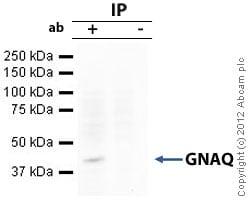 Immunoprecipitation - Anti-GNAQ antibody (ab75825)