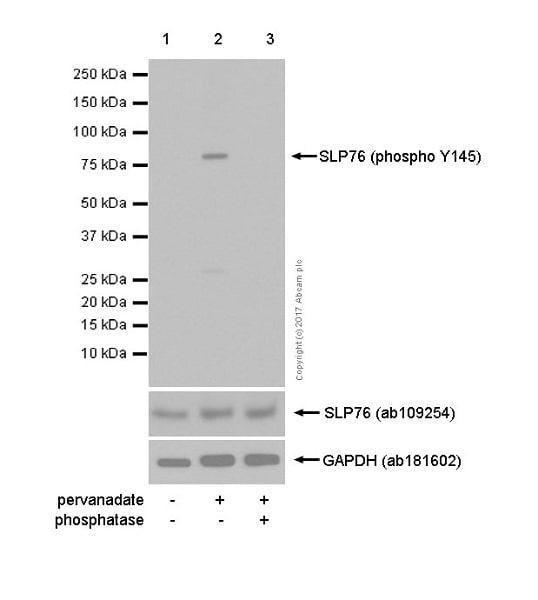 Western blot - Anti-SLP76 (phospho Y145) antibody [EP2853Y] (ab75829)