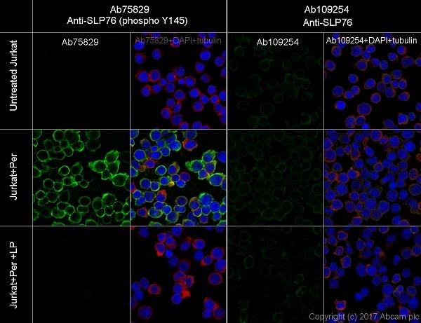 Immunocytochemistry/ Immunofluorescence - Anti-SLP76 (phospho Y145) antibody [EP2853Y] (ab75829)