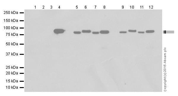 Western blot - Anti-Gelsolin plasma antibody [EPR1941Y] (ab75832)