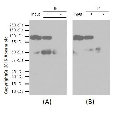 Immunoprecipitation - Anti-Gelsolin plasma antibody [EPR1941Y] (ab75832)