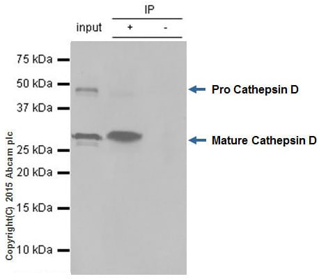 Immunoprecipitation - Anti-Cathepsin D antibody [EPR3057Y] (ab75852)