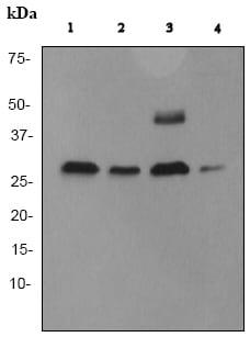 Western blot - Anti-Cathepsin D antibody [EPR3057Y] (ab75852)