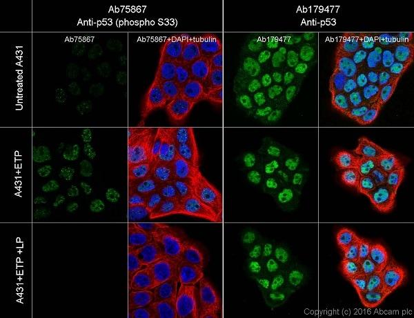 Immunocytochemistry/ Immunofluorescence - Anti-p53 (phospho S33) antibody [EP2393Y] (ab75867)