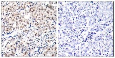 Immunohistochemistry (Formalin/PFA-fixed paraffin-embedded sections) - Anti-p27 KIP 1 (phospho T187) antibody (ab75908)