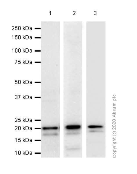 Western blot - Anti-Ferritin antibody [EPR3004Y] (ab75973)