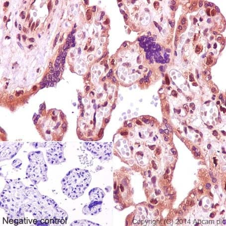 Immunohistochemistry (Formalin/PFA-fixed paraffin-embedded sections) - Anti-p57 Kip2 antibody [EP2515Y] (ab75974)