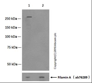 Western blot - Anti-Filamin A (phospho S2152) + Filamin B (phospho S2107) antibody [EP2310AY] (ab75978)
