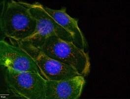 Immunocytochemistry/ Immunofluorescence - Anti-Filamin A (phospho S2152) + Filamin B (phospho S2107) antibody [EP2310AY] (ab75978)
