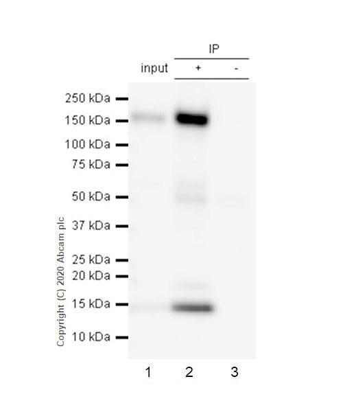 Immunoprecipitation - Anti-CD21 antibody [EP3093] (ab75985)
