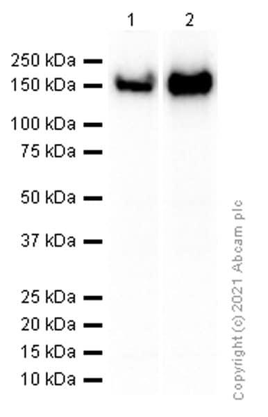 Western blot - Anti-CD21 antibody [EP3093] (ab75985)