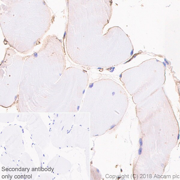Immunohistochemistry (Formalin/PFA-fixed paraffin-embedded sections) - Anti-Adiponectin antibody [EPR3217] (ab75989)