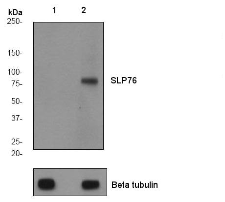 Western blot - Anti-SLP76 (phospho Y113) antibody [EPR2851] (ab75990)