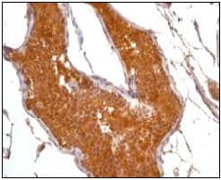 Immunohistochemistry (Formalin/PFA-fixed paraffin-embedded sections) - Anti-PKA alpha/beta/gamma (catalytic subunit) (phospho T197) antibody [EP2606Y] (ab75991)