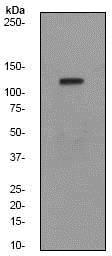 Western blot - Anti-FYB antibody [EPR2547Y] (ab76006)