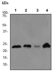 Western blot - Anti-PARK7/DJ1 antibody [EP2815Y] (ab76008)