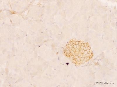 Immunohistochemistry (Formalin/PFA-fixed paraffin-embedded sections) - Anti-N Cadherin antibody [EPR1791-4] (ab76011)