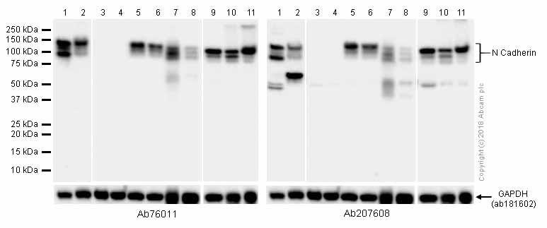 Western blot - Anti-N Cadherin antibody [EPR1791-4] (ab76011)