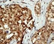 Immunohistochemistry (Formalin/PFA-fixed paraffin-embedded sections) - Anti-Casein Kinase 2 beta antibody [EP1995Y] (ab76025)