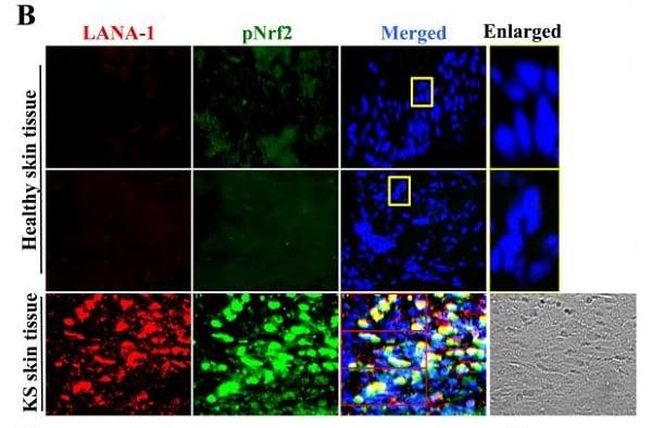 Immunocytochemistry/ Immunofluorescence - Anti-Nrf2 (phospho S40) antibody [EP1809Y] (ab76026)