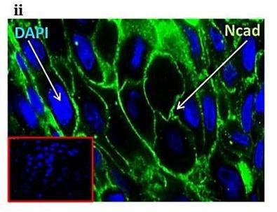 Immunohistochemistry (Formalin/PFA-fixed paraffin-embedded sections) - Anti-N Cadherin antibody (ab76057)
