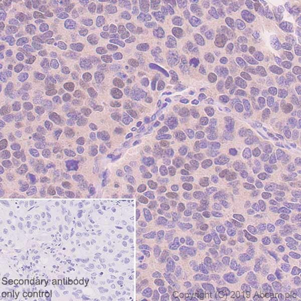 Immunohistochemistry (Formalin/PFA-fixed paraffin-embedded sections) - Anti-HOXB4 antibody [EP1919Y] (ab76093)