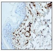 Immunohistochemistry (Formalin/PFA-fixed paraffin-embedded sections) - Anti-Factor XIIIa antibody [EP3372] (ab76105)