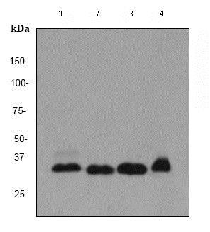 Western blot - Anti-PINCH 1 antibody [EP1943Y] (ab76112)