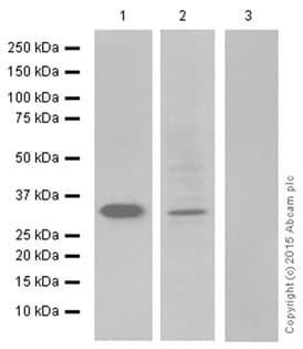 Anti-Prostate Specific Antigen antibody [8301] (ab403) | Abcam