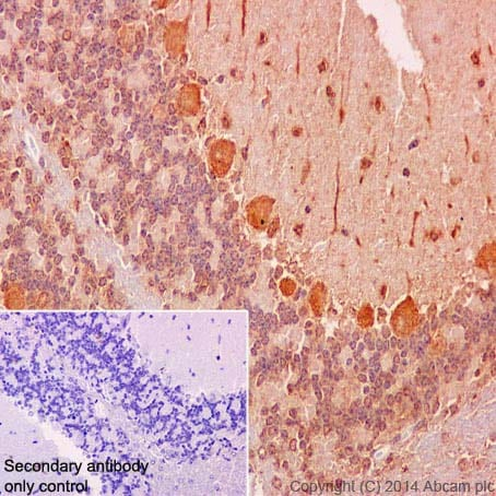 Immunohistochemistry (Formalin/PFA-fixed paraffin-embedded sections) - Anti-RSK4 antibody [EP1982Y] (ab76117)