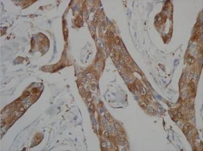 Immunohistochemistry (Formalin/PFA-fixed paraffin-embedded sections) - Anti-Methylated Lysine antibody (ab76118)