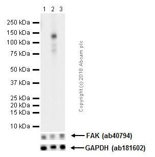 Western blot - Anti-FAK (phospho Y576) antibody [EP1897Y] (ab76120)