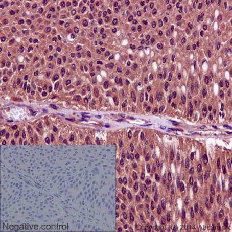 Immunohistochemistry (Formalin/PFA-fixed paraffin-embedded sections) - Anti-Cdk1 + Cdk2 + Cdk3 + Cdk5 (phospho Y15) antibody [EPR2233Y] (ab76146)