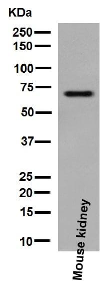 Western blot - Anti-TCF-4/TCF7L2 antibody [EP2033Y] (ab76151)