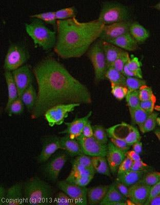 Immunocytochemistry/ Immunofluorescence - Anti-p40-phox antibody [EP2142Y] (ab76158)