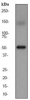 Western blot - Anti-Estrogen Related Receptor alpha antibody [EPR46Y] (ab76228)