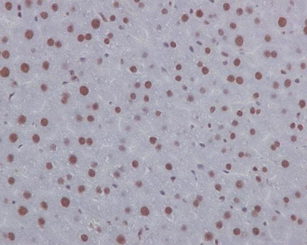 Immunohistochemistry (Formalin/PFA-fixed paraffin-embedded sections) - Anti-p130 antibody [EP2141Y] (ab76234)