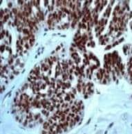 Immunohistochemistry (Formalin/PFA-fixed paraffin-embedded sections) - Anti-p53 (phospho S46) antibody [EP42Y] (ab76242)