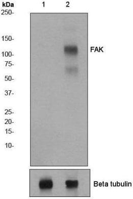 Western blot - Anti-FAK (phospho Y576 + Y577) antibody [EP1832Y] (ab76244)