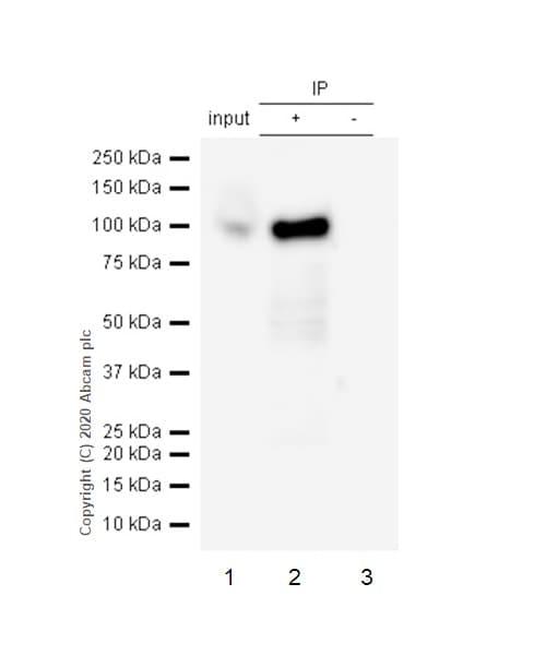 Immunoprecipitation - Anti-DAB2 antibody [EP2297Y] (ab76253)